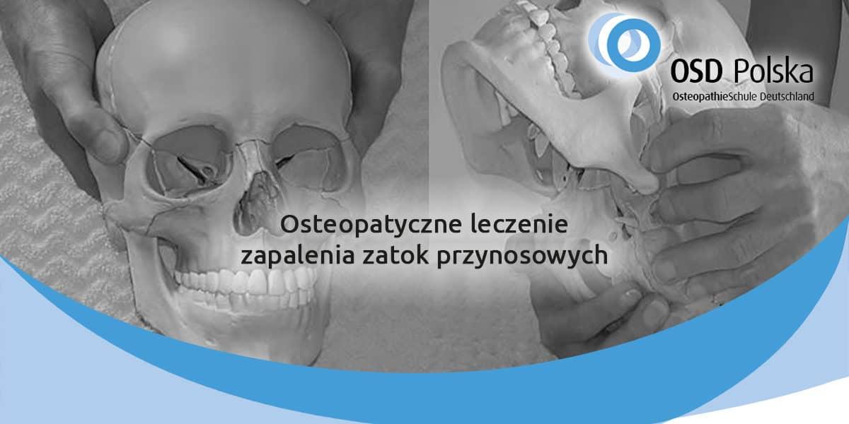 Osteopatyczne leczenie zapalenia zatok przynosowych